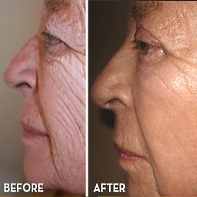 Differin Wrinkles Before After